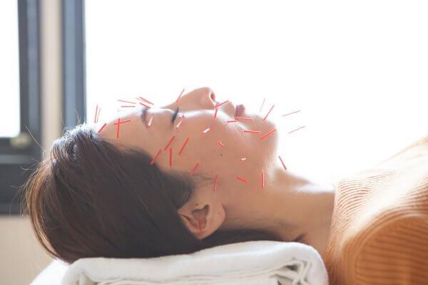 もり鍼灸整骨院の美容鍼施術。